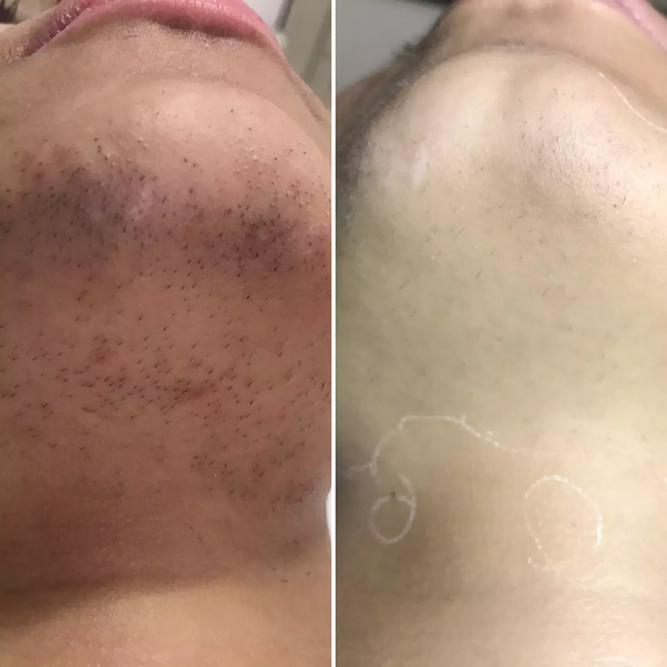 Cost of facial laser hair removal