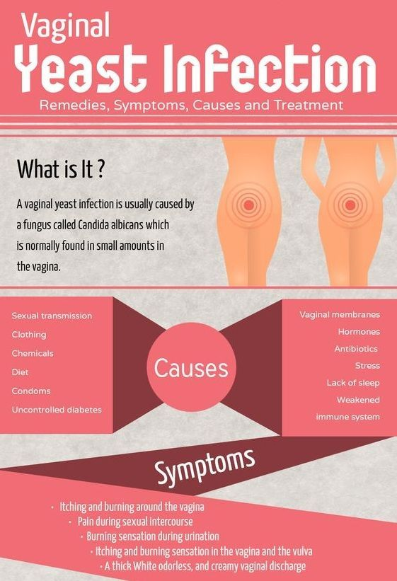 Vaginal irritation not yeast infection