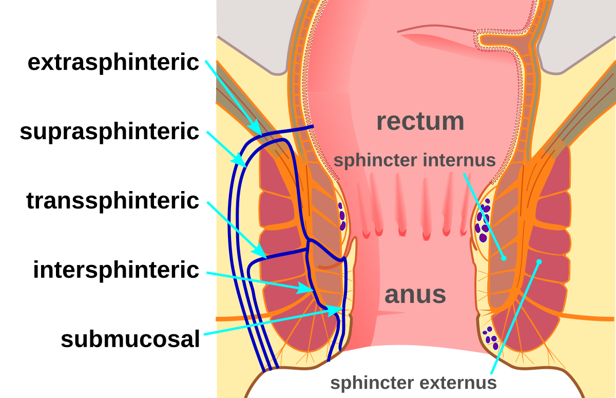Functional type of anal obstruction