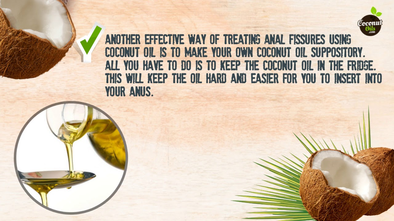 Coconut oil for anal fissure
