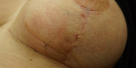 Breast reduction surgery scar treatement
